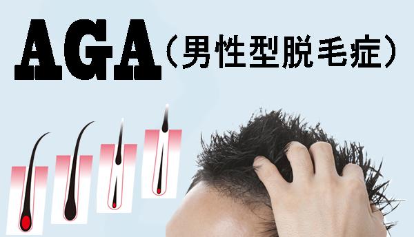AGA(男性型脱毛症)